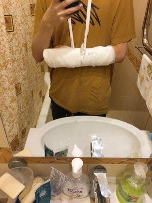 HR中单Ksani左臂骨折,gpk将替补出战